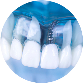 Dental Implant Service offered by Century Dental