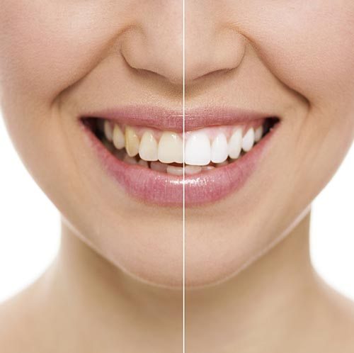 Before and after image of a woman's teeth after professional teeth whitening treatment from Century Dental.