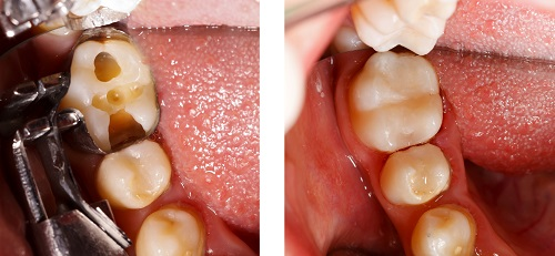 Before and after tooth colored composite fillings at Century Dental, your Hillsboro Dentist.