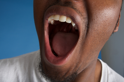 A man opening his mouth wide for his dental exam.