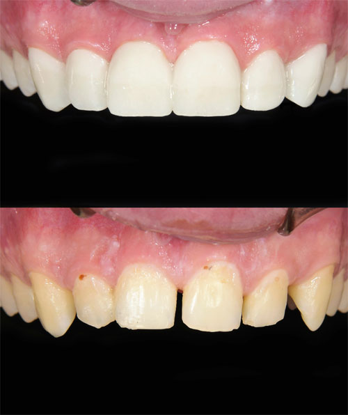 Before and after effects of Dental Veneers from Century Dental, Hillsboro, OR